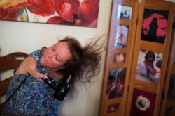 Femme ayant des bras raccourcis se séchant les cheveux. Woman with short arms blow drying her hair.