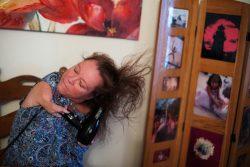 Femme ayant des bras raccourcis se séchant les cheveux.